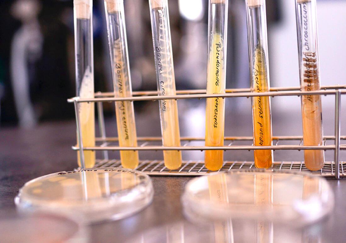 Baktériumok kémcsőben