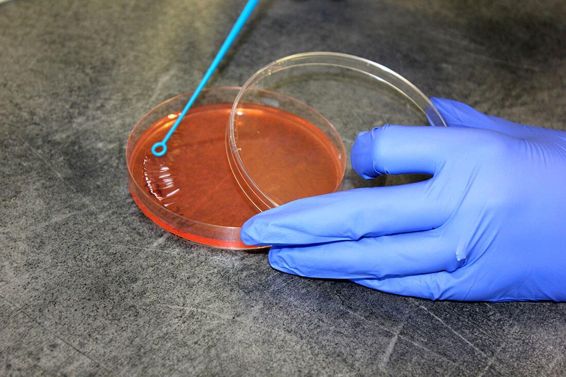 Baktériumok petricsészében